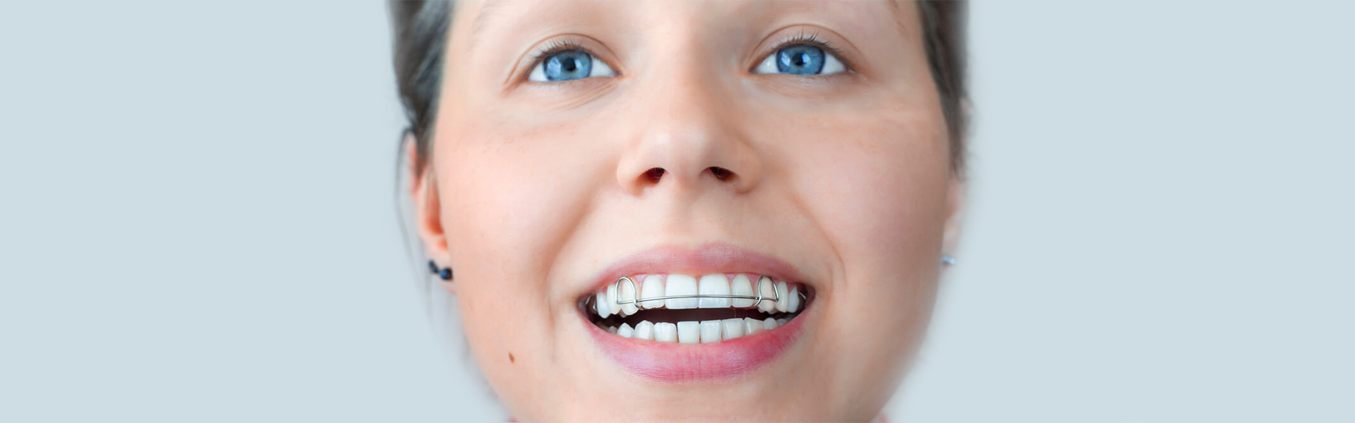 Everything You Should Know About Functional Orthodontics